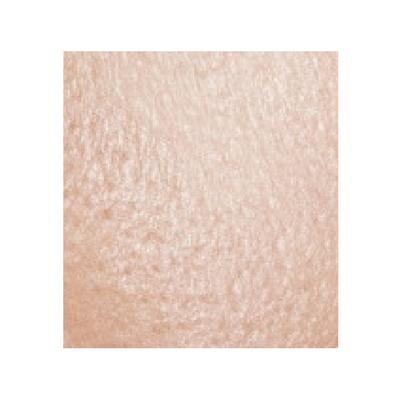 Exemple de peau grasse