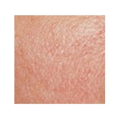 exemple peau sensible